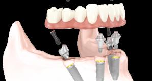 Implant en Titan
